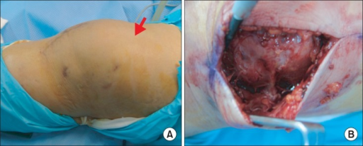 (A) Recurrent suprapatellar bursitis developed along the hemovac site (arrow). (B) Open excision was performed 4 months later.