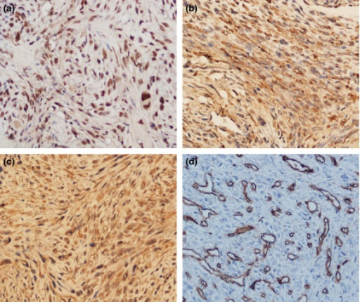 Representative highly positive immunohistochemical (200×) expression of apurinic/apyrimidinic endonuclease 1 (APE1), fibroblast growth factor 2 (FGF2) and its receptor 3 (FGFR3) and CD34 in human osteosarcoma. (a) APE1 antibody staining was predominantly localized in the nucleus. (b, c) FGF2 and FGFR3 were consistently present in the cytoplasm of tumor cells. (d) CD34 antibody staining was mainly observed in the membrane of vascular endothelial cells and cytoplasm of tumor stroma, and microvessel density was defined as CD34-positive endothelial cells separated from adjacent microvessels.