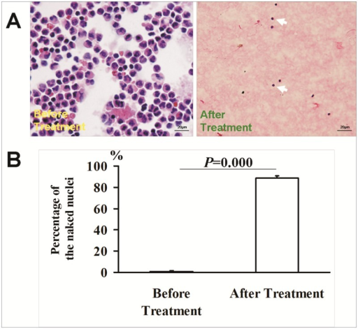 Morphology of the nucleated cells in blood before and after M-LDF treatment.A light microscopic view of nucleated cells (Wright's stain) (A). Naked cells were identified as blue and without circular red staining (white arrow). About 90% of cells were naked nuclei after M-LDF treatment vs 1% before the treatment (B).