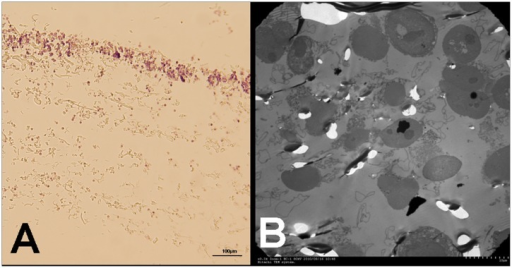 Ultrastructure of the M-LDF membrane.After filtration, the first layer membrane of M-LDF was examined by light microscopy (A) and transmission electron microscopy (B). A: Nucleated cells were mostly trapped in the superior 1/3 part of the membrane. B: The trapped cells were ruptured with cytoplasm leakage.