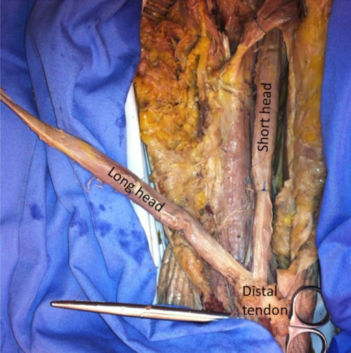 Cadaveric anatomical dissection showing that the long and short heads of the biceps exist as separate fascicles without cross-talk up to their coinsertion at the distal tendon and are thus candidates for separate electromyographic data collection.