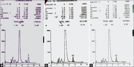 (a) Hemoglobin high-performance liquid chromatography of patient showing a peak in D-window of 8.9% with a retention time of 4.07 min. Chromatogram of father (b) and mother (c)