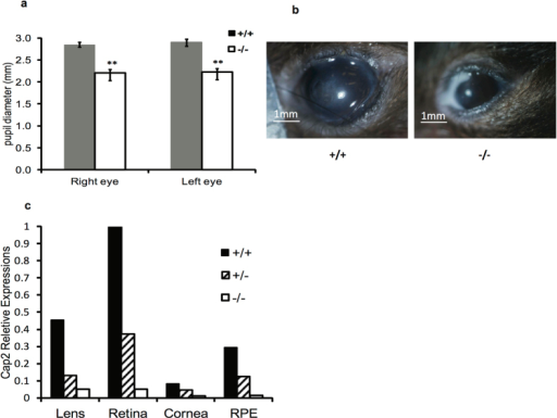 Eye infections and microphthalmia in knockout mice.(a) Pupil diameter in cap2−/cap2− and cap2+/cap2+ mice. Error bars ± S.D. (b) Examples of eye infections seen in cap2−/cap2− mice. Photos by DCC. (c) CAP2 expression in lens, retina, cornea and retinal pigment epithelium (RPE) was determined by qPCR.