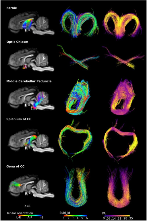 ROI-specific fibers from fornix, optic chiasm, middle cerebellar peduncle, and splenium and genu of CC. Column 1 shows the location of the ROIs with a rectangular box, the overlaid fiber tracts are colored by the tensor orientation. Column 2 shows the extracted fibers, with each color representing fibers from each individual. Column 3 shows the extracted fibers colored by the FA values, with brighter color representing higher FA values.