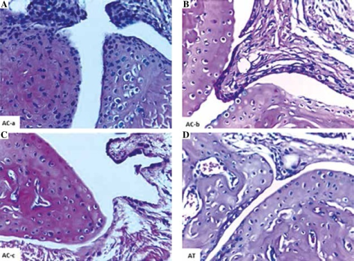 Representative photomicrographs showing the histopathological picture of hind paws and digits of arthritic control (AC) and arthritic treated (AT) mice in H&E stained sections (× 400). AC mice showed hyperplastic synovial membrane composed of multiple layers of synoviocytes (AC-a), marked pannus formation and fibroplasia of the underlying connective tissues associated with cartilage erosion and bone resoprption (AC-b), and multiple panni were formed from synovial membrane (AC-c). However, AT mice revealed mild pannus formation, fibroplasias, cartilage erosion and bone resoprption (AT)