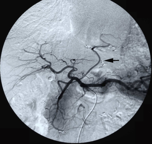 Preoperative angiography via celiac artery showed that the RGEA graft remained well patent.