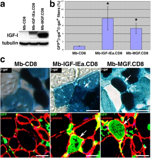 Myoblast-mediated delivery of IGF-I increases the contribution of BMDCs to skeletal muscle. (a) Western blot analysis of IGF-I expression by retrovirally transduced myoblasts isolated based on CD8 expression using FACS. IGF-IEa migrates as a 14-kD protein and MGF as a 12-kD protein. (b) 5 ×105 myoblasts were injected into the TA muscles of mice that had received a BMT 8 wk earlier, and muscles were harvested 4 wk after cell injection. The percentage of GFP+β-gal+ myofibers relative to total β-gal+ myofibers is shown (± SEM). P value was determined with a t test. *, P < 0.02. (c) Muscle sections were analyzed for β-gal expression (top), and serial sections were analyzed by immunofluorescence staining for GFP and laminin (bottom). Arrows indicate examples of β-gal+ myofibers that were also GFP+. Bars, 15 μm.