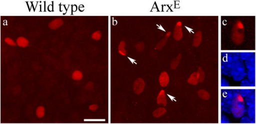 ArxE causes nuclear inclusion in cortical neurons. Confocal microscopy of cortical neurons electroporated on E14.5 and immunostained for FLAG after 2 d in vitro. (a) Cortical neurons expressing FLAG-tagged wild-type Arx exhibit diffuse nuclear expression. (b) Cells expressing ArxE often form nuclear inclusions (arrows). (c–e) Higher power of one nucleus shows an intensely staining inclusion along with faint diffuse nuclear staining for ArxE. DAPI counterstaining (d) shows that the inclusion is located at the periphery of the nucleus (merge in e). In all frames, the ventricular surface is toward the top. Bar: (a and b) 25 μm; (c–e) 10 μm.