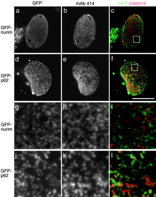 Localization of GFP-p62 and GFP-nurim compared with that of nuclear pores. Vero cells were transiently transfected with either GFP-nurim (a–c and g–i) or GFP-p62 (d–f and j–l). The bottom surfaces of nuclei are shown with enlargements of the regions indicated in c and f shown in g–i and j–l, respectively. (a, d, g, and j) GFP fluorescence and (b, e, h, and k) nuclear pore labeling by mAb 414 followed by a rhodamine secondary antibody. (c, f, i, and l) An overlay with GFP in green and rhodamine in red. Bar, 20 μm.