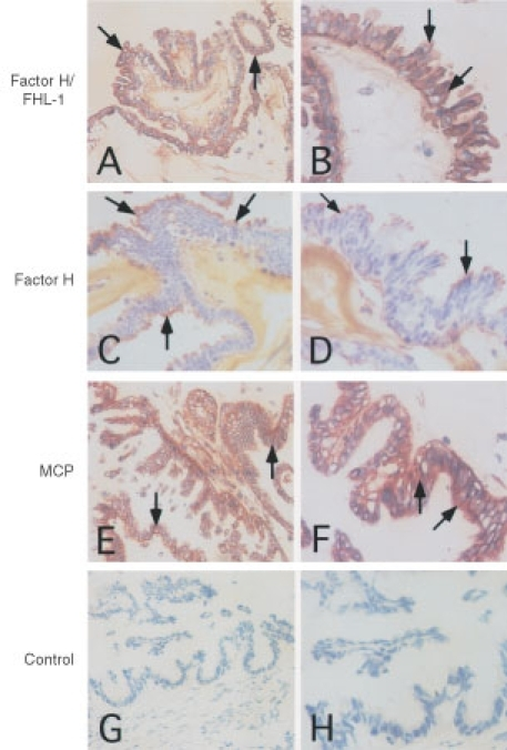 Immunohistochemical analysis of the presence of FHL-1 and factor H in ovarian tumours. Cryostat sections (5 μm) of a serous cystadenocarcinoma were fixed and stained with the 196X (A, B) and VIG8 (C, D) mAb against factor H/FHL-1 SCR1 and factor H SCR19-20, respectively. MCP expression was analysed by the mouse anti-MCP mAb BG24 (E, F) and an irrelevant mouse IgG was used as a negative control (G, H). The bound mAbs were detected using the Vectastain ABC immunoperoxidase staining kit. Original magnifications, 200× (left row) and 400× (right row). While combined staining for factor H and FHL-1 occurred throughout the tumour epithelium (A, B) positive staining for factor H (C, D) was seen most strongly on the outermost mucus layer. Arrows indicate positively stained areas.