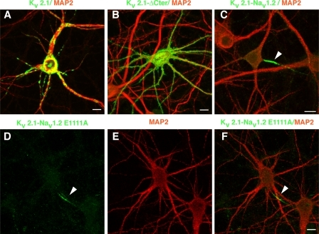 Abrogation of E1111 of the Nav1.2 ankyrin-binding motif did not impair ion channel segregation at the AIS of hippocampal neurons. Cell surface distribution of Kv2.1 (A), Kv2.1-ΔCter (B), Kv2.1-Nav1.2 (C), and Kv2.1-Nav1.2 E1111A mutant (D–F) in cultured hippocampal neurons. The addition of the Nav1.2 ankyrin-binding motif to the C terminus of Kv2.1-ΔCter segregated Kv2.1 at the AIS (C, arrow). Kv2.1-Nav1.2 compartmentalization at the AIS was not impaired by the Nav1.2 E1111A mutation (D and F, arrow). The indicated constructs were immunodetected with an antibody to myc (green) before cell permeabilization; the somatodendritic domain was subsequently identified by MAP2 staining. Bars, 10 μm.