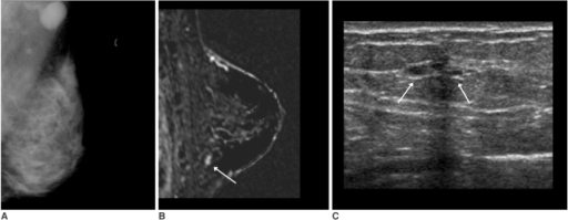 A 42-year-old woman with palpable left axillary lymph node metastasis. The mammogram (A) showed extremely dense breast parenchyma without abnormal findings in the breast. The initial screening US was normal. The standard subtraction image (B) of the contrast-enhanced breast MRI showed an enhancing nodule, about 7 mm in size, in the left lower breast (arrow) with a washout pattern. The MR-guided second look US examination localized a few benign cysts in that area (arrows) (C). US-guided fine needle aspiration revealed malignant cells.