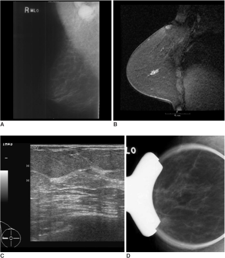 A 57-year-old woman with palpable right axillary lymph node metastasis. The mammogram (A) and US showed negative findings in the breast. The standard subtraction image of the contrast enhanced-MRI (B) showed a 1.8-cm sized area of linear enhancement with an early washout pattern, suggesting malignancy in the outer portion of the right breast. MR-guided second-look US (C) and spot-compression with magnification mammography (D), which targeted the areas of MR-detected lesion through the use of a vitamin E capsule attached to the surface of the right breast overlying the MR-detected lesion, could not find the corresponding lesion. After modified radical mastectomy, ductal carcinoma in situ (0.9 cm in extent) was found in the right outer breast.