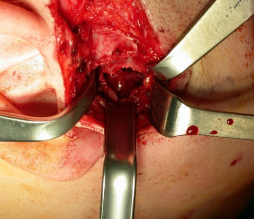 Intraoperative exposure of the thin, translucent lateral cortical plate overlying the mandibular cyst. Afterwards a low condylectomy, a coronoid process and mandibular ramus curettage were performed.
