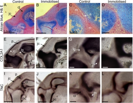 Anatomical changes in the knee joints of immobilised embryos.Longitudinal sections through the chick knee joint of control and immobilised embryos (4.5 days of immobilisation) at low (A, B, E, F, I, J) and high magnification (C, D, G, H, K, L). Histological sections (E–D) were stained using alcian blue and counter stained with haematoxlyin and eosin. Other sections show the expression of COL2A1 and TNC mRNA in control and immobilised knee joints. c; cavity, cl; chondrogenous layers, jc; joint capsule, lg ; ligament, m; meniscus, p; patella, pc ; perichondrium, t; tendon. Scale bar 0.5 mm (A, B, E, F, I, J) and 0.1 mm (C, D, G, H, K, L).