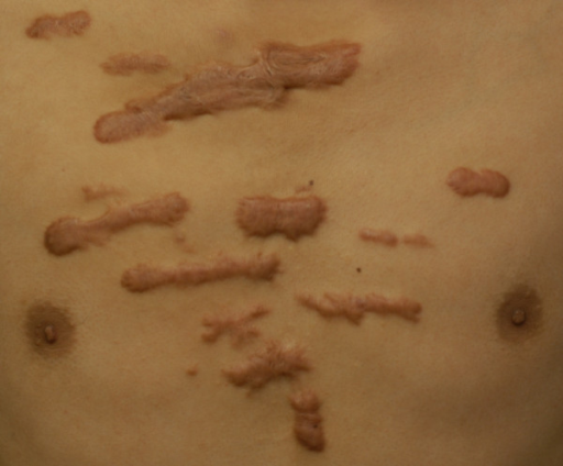 steroid pretreatment contrast allergy