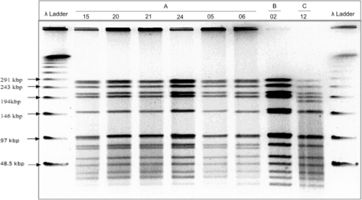 Restriction Fragments Generated by Pulsed-Field Gel Electrophoresis.Showing banding patterns of serotype 2 representing 3 different pulsetypes, A (N = 36), B (N = 4)& C (N = 1), detected from Sma1 digested genomic DNA.