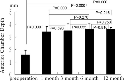 The group A shows the anterior chamber depth (in terms of Pentacam) pre-operation and at 1 month, 3 month, 6 month, and 12 month after operation, the bars mean the average of the test, the error bars mean standard deviation.