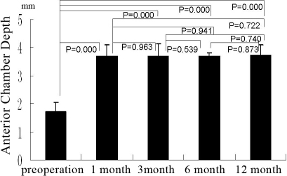 The group B shows the anterior chamber depth (in terms of Pentacam) pre-operation and at 1 month, 3 month, 6 month, and 12 month after operation, the bars mean the average of the test, the error bars mean standard deviation.