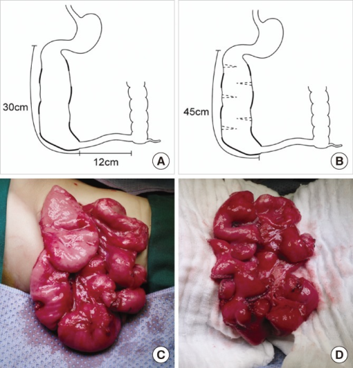 Schematic illustration of the second STEP and photographs of the small bowel. (A) Preoperative and (B) postoperative bowel appearance and length of the second STEP, and the appearance of the small bowel (C) before and (D) after the second STEP.
