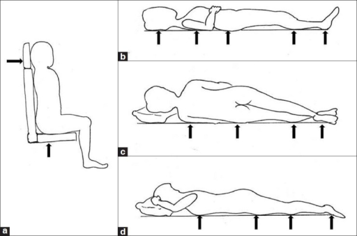 A D Pressure Points In Sitting Supine Lateral And P Open I