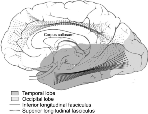 Major brain regions implicated in first episode schizophrenia (FES) based on diffusion tensor imaging studies. A parasagittal section of the cerebrum shows the major brain regions and white matter tracts, i.e., temporal lobe (highlighted dark grey), occipital lobe (highlighted light grey), corpus callosum, inferior (straight lines) and superior longitudinal fasciculi (dotted lines) that have been shown to exhibit white matter abnormalities in FES.