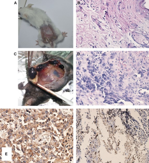 Balb/c mice and chemical carcinoma: (A) macroscopic image and (B) histological evaluation of skin (week 14) HE ×400, presence of oedematous dermis, hyperemiated blood vessels and chronically inflammatory infiltrate–strong inflammatory process and C skin subepithelial carcinoma C57BL/6J and B16 4A5 melanoma: (C) macroscopic image, (D) histological evaluation, HE ×400, diffusion of melanoma on skin level, (E) S100 immunohistological confirmation, Protein S-100 immunostaining malignant melanoma (×400, EnVision) and (F) melan-A immunohistological confirmation of skin melanoma, Positive focal reaction for melan-A in malignant melanoma (×200, EnVision).