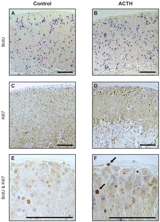 Effect of acute ACTH treatment on BrdU-pulse-chase-labelled cells in the adult mouse adrenal cortex.Adrenal sections from female F1 mice treated acutely with ACTH 6 weeks after 1-week BrdU infusion, immunostained for (A,B) BrdU, (C,D) Ki67 and (E,F) BrdU/Ki67. Mice (n =6/group) were injected with saline vehicle (A,C,E) or ACTH (B,D,F), as described in the Materials and Methods section. Ki67-positive cells are indicated by brown nuclear staining while BrdU-labelled cells are identified by blue nuclear staining. Typical examples of BrdU/Ki67 dual-labelled cells are shown by arrows in F. Sections C and D were lightly counterstained with haematoxylin but sections A,B,E & F were mounted without counterstaining. Scale = 100 µm.