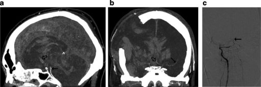 CTA findings in a 50-year-old man (patient no. 45) with traumatic brain injury (epidural hematoma in the right parietal region, massive intracerebral, and subarachnoid and intraventricular hemorrhage) and right sided craniectomy presented with signs of BD on clinical examination: a Ten millimeter maximum intensity projection (MIP) in sagittal plane. CTA shows opacification of the BA (thin arrow) and a trace of contrast in A2 segments of the ACAs (thick arrow). b Ten millimeter MIP in coronal plane. CTA shows opacification of the M1 segment of the left MCA (thin arrow) and the A1 segments of the ACAs (thick arrow); these findings exclude the diagnosis of BD according to the 10-point scale but confirm BD according to the 7- and 4-point scales. c Catheter angiography of the right VA performed 0.5 h later revealed delayed, residual filling of the BA (arrow) that occurred 21 s after injection. This result was interpreted as stasis filling consistent with the diagnosis of BD