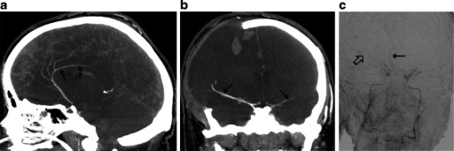 CTA findings in a 22-year-old woman (patient no. 42) with a brain stem ischemic stroke and a right sided craniectomy who presented with signs of BD on clinical examination. a Ten millimeter MIP in sagittal plane. CTA shows opacification of the right pericallosal artery (thin arrows); b Ten millimeter MIP in coronal plane. CTA shows opacification of the M1 segments of the MCAs (thin arrows). These findings exclude the diagnosis of BD according to the 10- and 7-point scales but confirm BD according to the 4-point scale. c Catheter angiography from the aortic arch performed 1 h later revealed delayed, residual filling of the M1 segment of the right MCA (thick arrow) and A2 segment of the right ACA (thin arrow) that occurred 32 s after injection. This result was interpreted as stasis filling consistent with the diagnosis of BD
