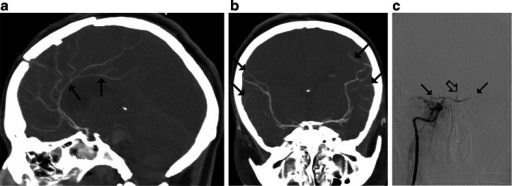 CTA findings in a 34-year-old woman (patient no. 44) with brain stem hematoma and frontal craniotomy presenting signs of BD on clinical examination. a Ten millimeter MIP in sagittal plane. CTA shows opacification of both pericallosal arteries (thin arrows); b Ten millimeter MIP in coronal plane. CTA shows opacification of the cortical segments of the MCAs (thin arrows); these findings exclude the diagnosis of BD according to the 10-, 7-, and 4-point scales. c Catheter angiography of the right ICA performed 3 h later revealed delayed, residual filling of the M1 segments of the MCAs (thin arrows) and the A2 segments of the ACAs (thick arrow) that occurred 18 s after injection. This result was interpreted as stasis filling consistent with the diagnosis of BD