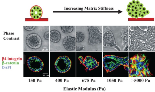 The importance of tissue context: ECM stiffness modulates mammary tissue morphogenesis. MEC growth and morphogenesis are regulated by matrix stiffness. Phase-contrast microscopy and confocal immunofluorescence images of nonmalignant MECs grown for 20 d on top of polyacrylamide gels of increasing stiffness (140–5000 Pa) conjugated with reconstituted basement membrane (rBM) and overlaid with rBM to generate a 3D rBM ECM microenvironment. Findings showed that increasing ECM stiffness enhanced MEC growth, as revealed by an increase in colony size and disrupted tissue organization indicated by aberrant tissue margins and invasive structures (phase-contrast images: top panels). ECM stiffness also progressively disrupted tissue morphology, as indicated by disrupted cell–cell localized β-catenin (green) and loss of basally localized (α6)β4 integrin (red) with nuclei costained with 4′,6-diamidino-2-phenylindole (DAPI; blue) (confocal images: lower panels). (Reproduced with modification and proper permission obtained from Elsevier as published in Paszek et al., 2005.)