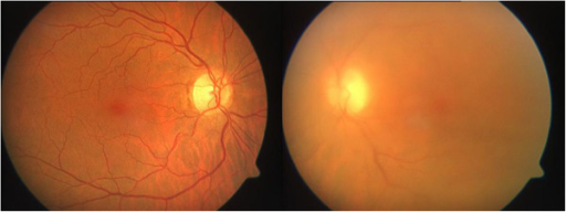 Fundus examination of the left eye revealed vitreous opacities and chorioretinal infiltrates.