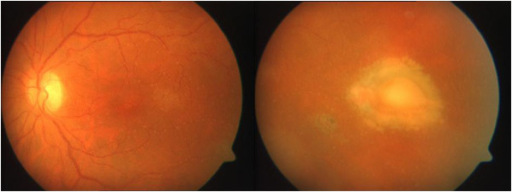 Fundus examination of the left eye after vitrectomy revealed a clearer insight, and chorioretinal scars.