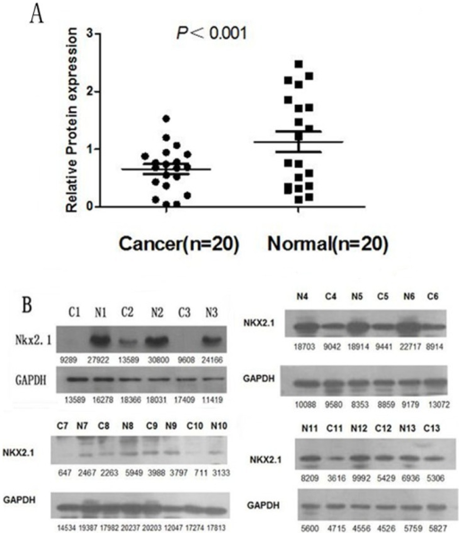 Western blotting analysis of NKX2.1 protein expression in gastric cancer patients.(A). NKX2.1 protein expression was decreased in 13 tumor tissues compared with adjacent non-tumorous tissues (p<0.001). (B). The NKX2.1 protein expression was lower in the cancer tissues than in matched adjacent non-tumorous tissues.