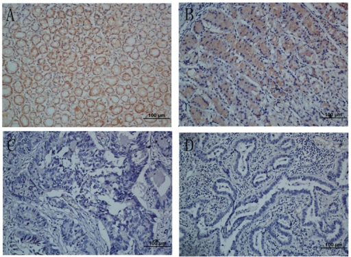Immunohistochemical analyses of NKX2.1 expression in resection specimens of primary gastric carcinoma.(A) Strong NKX2.1 staining was observed in noncancerous gastric mucosa glands. (B) Immunostaining of the well-differentiated gastric cancer cells. (C) Weak NKX2.1 staining in poorly-differentiated gastric adenocarcinoma. (D) NKX2.1-negative gastric adenocarcinoma. Original magnification for A–D, ×200.