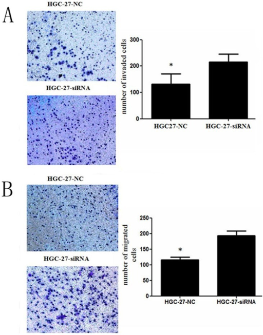 Transwell invasion (A) and migration (B) assays of NKX2.1 down-regulated HGC-27 cells.Silencing NKX2.1 significantly promoted cell invasion and migration by the HGC-27 cells, * P < 0.05.