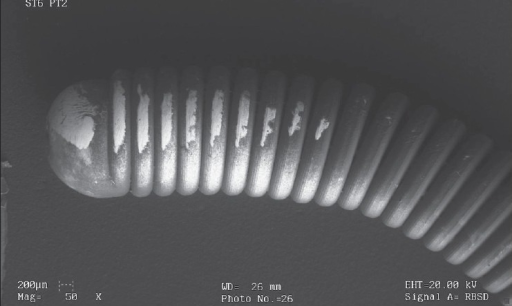 A metal double-pigtail ureteral stent which has macroscopically clean appearance has been covered by a thin layer of encrustation when its surface is observed by electron microscopy. In fact, energy dispersive analysis by X-ray revealed that the deposits have high concentrations of calcium