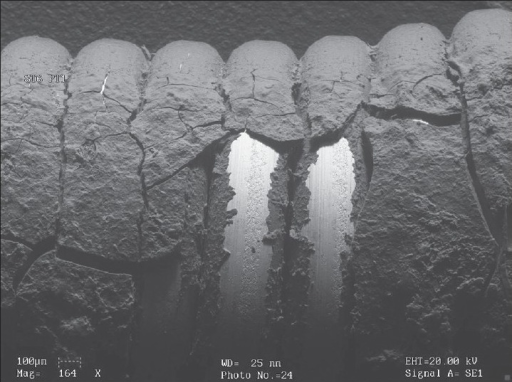 The appearance of same stent in electron microscopy