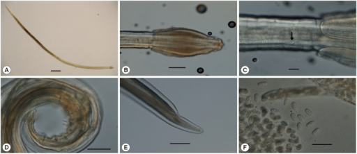 Cosmocephalus obvelatus (Creplin) from Larus canus, light microscopic views. (A) Whole sample, female. Scale bar=1,000 μm. (B) Anterior end, female, lateral view. Scale bar=200 μm (C) Bifurcated deirids, note lateral alae. Scale bar=50 μm. (D) Posterior end, male. Nine caudal papillae. Scale bar=100 μm. (E) Posterior end, female. Scale bar=200 μm. (F) Embryonated eggs in uterus. Scale bar=50 μm.