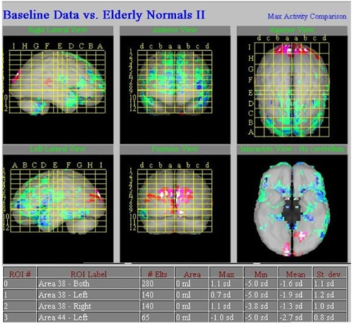 Typical images of respective perfusion defects in a 43-year-old female patient with epilepsy are shown. Semi-quantitative analysis of the decreased areas of rCBF, which was compared with the regional database by z-score, showed a decrease of 2.7 standard deviations in the left frontal lobe (Br 44) and a decrease of 1.9 and 1.3 standard deviations in bilateral temporal lobe (Br 38).