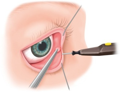 The precaruncular incision is performed after intubation of the lacrimal canaliculi and retraction with lacrimal duct probes; the caruncula is retracted in medial direction with forceps, the precaruncular incision is performed with a fine monopolar needle.