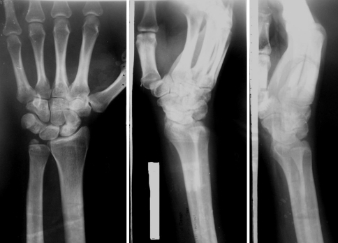 Anteroposterior, oblique and lateral radiographs taken 5 years after surgery. The ulnar styloid shows asymptomatic non union