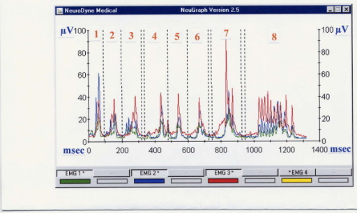 Typical single swallows and drinking of a person with recurrent tonsillitis, age 24 years, (MS, SUB and INF locations). Trials 1–3 – saliva swallows, trials 4–6 – normal swallows, trial 7 – excessive swallow, trial 8 – 100 ml drinking. The SUB peaks are normal (blue line) except trial 1; MS peaks are somewhat high, especially in single swallows being almost similar to the SUB amplitude (green line), INF is very high compare to normal database (red line).