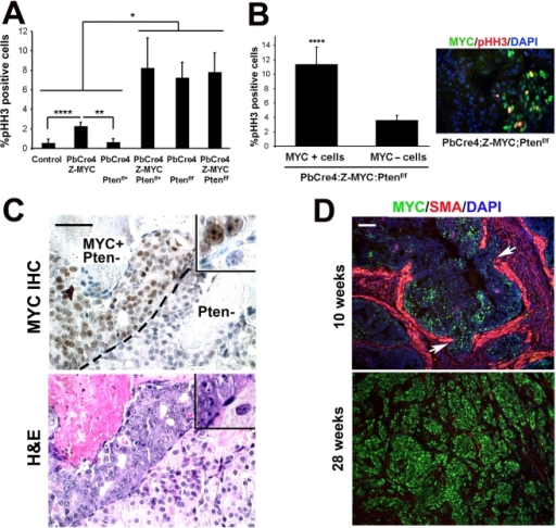 c-MYC expression increases the proliferation and tumorigenicity of Pten-deficient cells.(A) Proliferation was determined by analysis of phospho-histone H3 staining. (B) Phospho-histone H3 index in c-MYC-positive or c-MYC-negative cells in PbCre4;Z-MYC;Ptenf/f prostates. Inset: double staining shows colocalization of phospho-histone H3 with c-MYC in PbCre4;Z-MYC;Ptenf/f prostate. N = 3–4 mice per group. *p<0.05, **p<0.005, ****p<0.01. (C) c-MYC staining identifies MYC-expressing cells next to MYC-negative cells in the same gland of PbCre4;Z-MYC;Ptenf/f mouse prostate. An adjacent H&E-stained section is also shown. Note distinct, higher grade pathology of c-MYC+ cells. Scale bar: 50 µm. (D) c-MYC+;Pten- cells outcompete Pten- cells. Prostates from 10-week-old and 28-week-old PbCre4;Z-MYC;Ptenf/f mice were stained for c-MYC and smooth muscle actin. At 10 weeks, c-MYC expression is focal; at 28 weeks, it is uniform. Arrows indicate discontinuity of smooth muscle actin (focal micro-invasion). Scale bar: 100 µm.