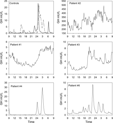Serum GH concentration profiles of 5 patients with a thyrotropinoma and 2 healthy representative controls (left upper panel, continuous line male subject, dashed line female subject). Note the difference in scales of the abscissa. The GH secretion patterns of patients #1–3 are clearly abnormal, while that of patient #6 only shows an increased basal (interpulse) level