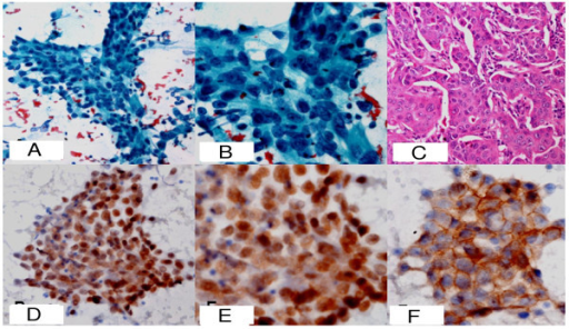 A. Low power photomicrograph of the FNA smear from anterior mediastinal mass showing atypical ductal cells arranged in trabecular pattern (PAP ×100). B. The same ductal cells showing moderate nuclear pleomorphism, overlapping and prominent nucleoli (PAP × 400). C. Histophotomicrograph of the excised primary breast lesion showing malignant ductal cells arranged in trabeculae (H&E × 200). D. Ductal cells form the FNA of anterior mediastinal mass showing nuclear positivity for ER protein (IHC-ER×100). E. Same ductal cells showing positivity for PR protein (IHC-PR × 200). F. Same ductal cells showing grade 3 positivity for erb-B2 (Her2neu) stain (IHC-ERBB2 × 200).