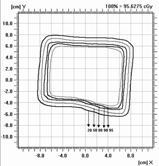 Isodose perpendicular to the beam central plane for 6-MeV electron beam at 100 cm SSD for 6.5 × 9 cm2 field size