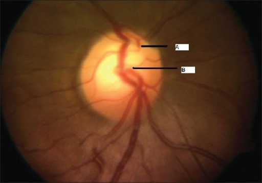 Case 1. Color fundus photograph of the optic nerve head shows the superior (A) and inferior (B) hemi-trunks of central retinal artery emerging separately