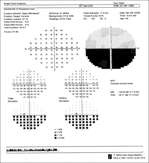 Case 1. A (30-2) Humphrey's visual field analysis of the right eye shows an inferior altitudinal defect corresponding to the territory of vascular occlusion